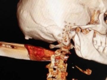 Radiografía de la víctima
