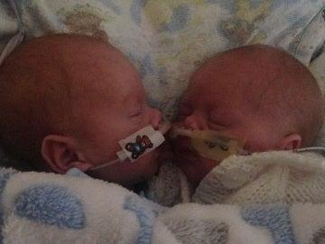 Los bebés prematuros que mejoraron al estar cerca el uno del otro