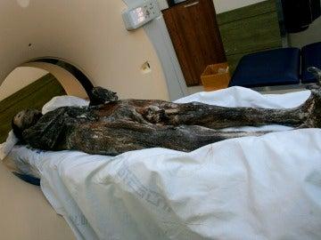 TAC a una momia