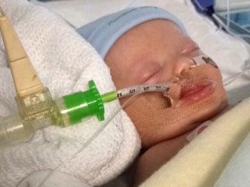 El bebé enfermo de bronquitis en el hospital con un ventilador