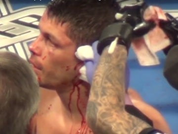 Le parten la oreja a Stephen Smith en un combate
