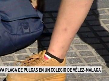 Los padres de un colegio de Málaga denuncian de nuevo la aparición de pulgas