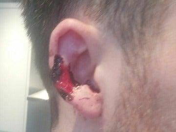 La oreja de la víctima