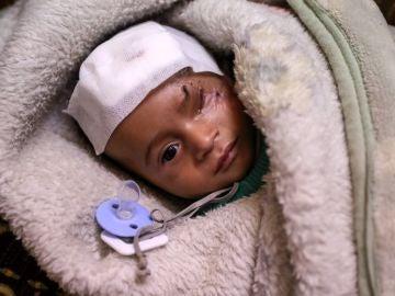 Karim, un niño herido en un bombardeo al este de Al-Guta