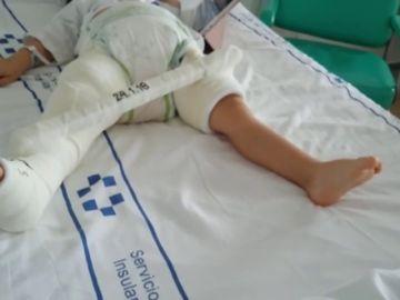 Un niño de dos años que se rompió el femúr  en Gran Canaria no puede volver a casa porque el seguro no cubre viajar en camilla