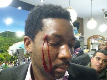 El actor muestra un corte en la ceja tras el ataque racista en Madrid