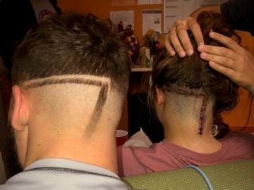 Los dos hermanos con la misma marca en la cabeza