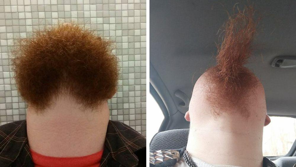 El reto de la barba