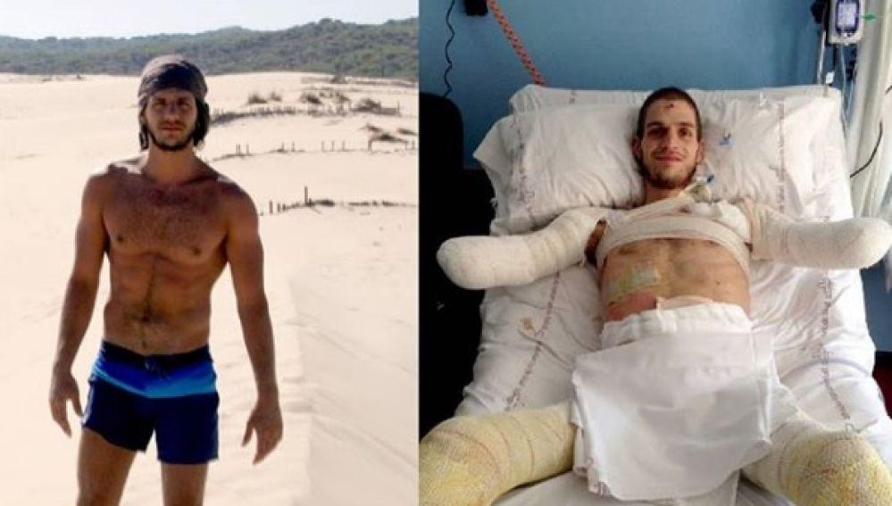 El joven Davide antes y después de ser amputado