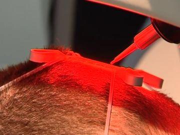 """Los riesgos de los implantes de pelo """"low cost"""" en Turquía"""