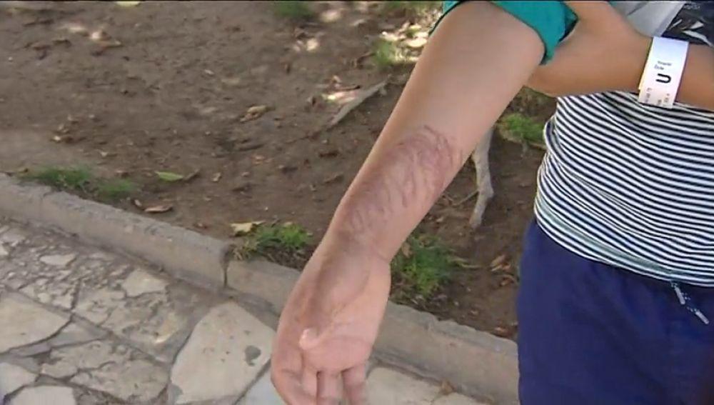 La picadura de una medusa deja a un niño graves lesiones en la piel