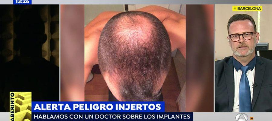 Antena 3 tv el peligro de los trasplantes de pelo en for Antena 3 espejo publico hoy