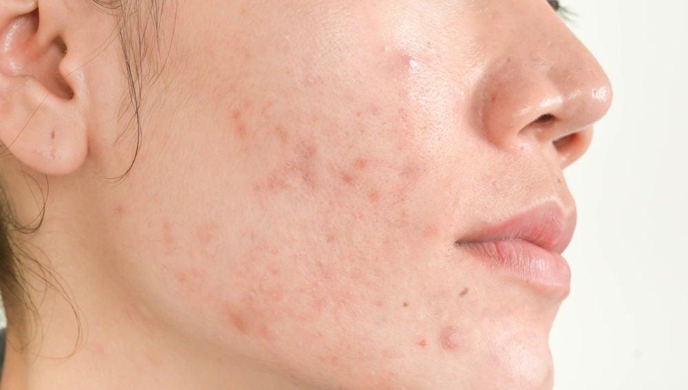 Tratamientos caseros para pieles con acné