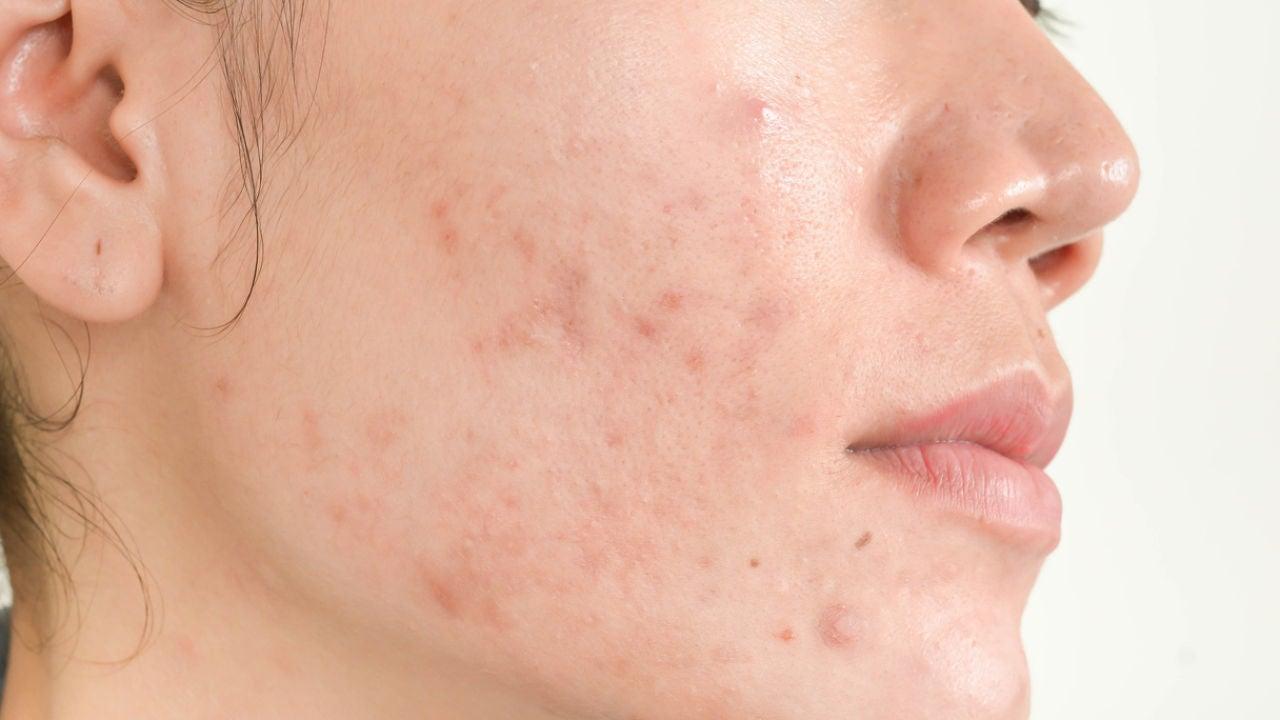mejores remedios caseros para el acné