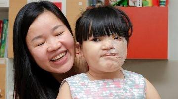Reconstrucción de rostro a una niña de cinco años