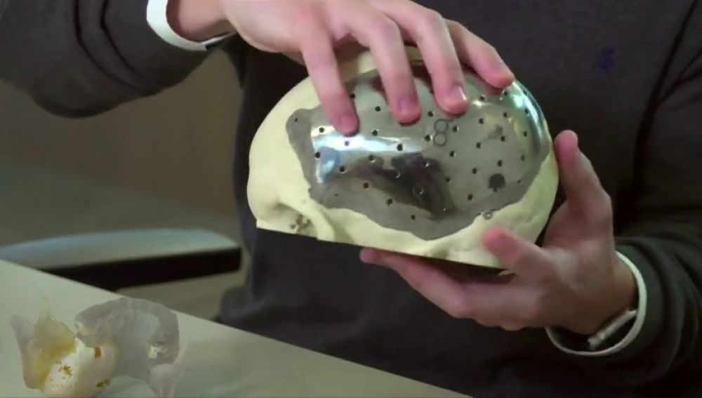 Una empresa brasileña crea partes del cuerpo artificiales con impresión 3D