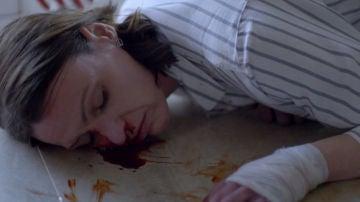 Simon Foster deja inconsciente a la doctora tras pegarle un golpe