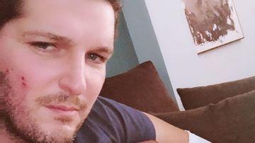 Manu Tenorio se recupera favorablemente de las heridas del accidente doméstico que sufrió