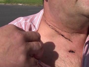 Un taxista sobrevive tras un atraco en el que le cortaron el cuello