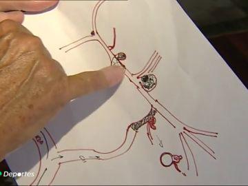 Así fue la operación de cuatro aneurismas de Luis Moya