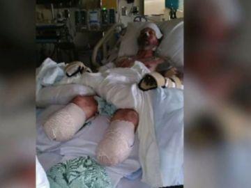 Greg Manteufel, el hombre al que le amputaron sus extremidades por una bacteria contagiada con la saliva de su perro