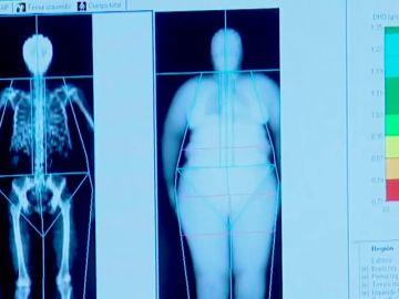 La Conselleria de Sanidad prohibirá la incineración de personas con obesidad mórbida