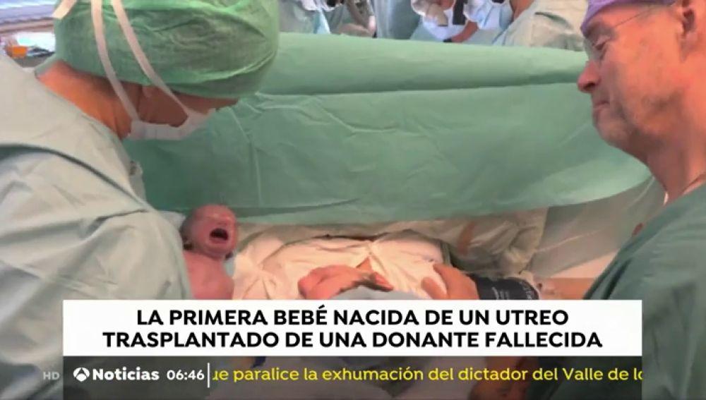 Nace en Brasil la primera bebé del mundo a través de un trasplante de útero de una donante muerta