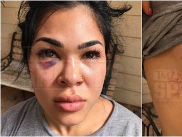 Rachael Ostovich muestra sus heridas tras la agresión de su marido