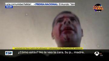 Las impactantes imágenes de Frank Cuesta a punto de morir tras ser disparado por traficantes de animales