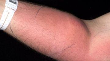 El brazo del paciente