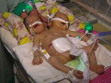 Médicos piden ayuda para trasladar a una pareja de hermanos siameses nacidos en Yemen