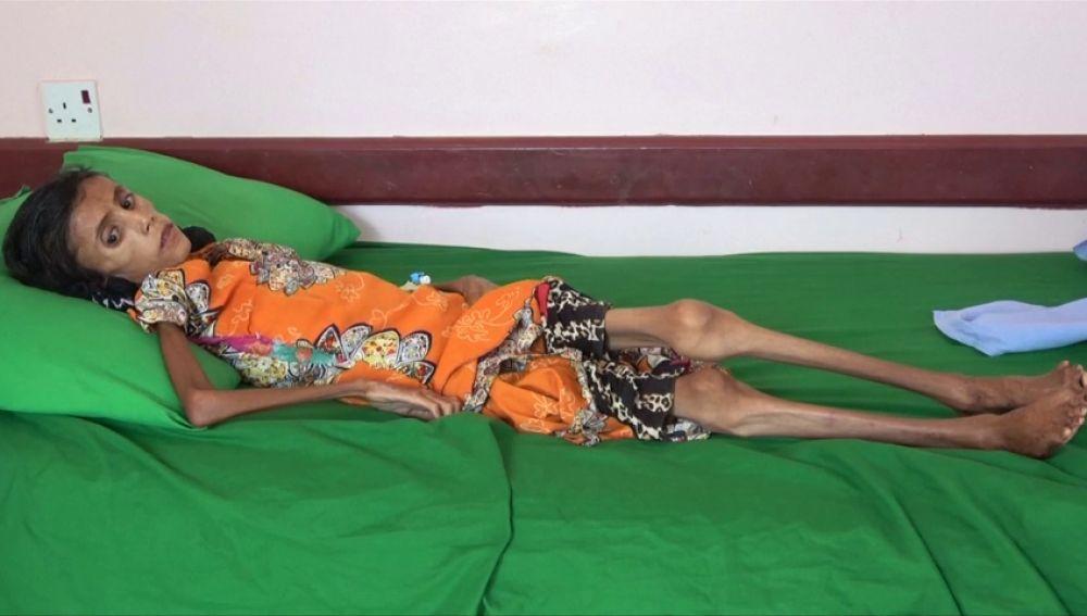Fatima Qoba, la niña de 12 años y 10 kilos que se ha convertido en la imagen de la hambruna en Yemen