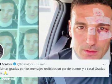 Atropellan al seleccionador argentino Lionel Scaloni cuando iba en bicicleta por Mallorca