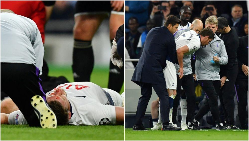 Tremendo golpe de Vertonghen en el Tottenham vs Ajax