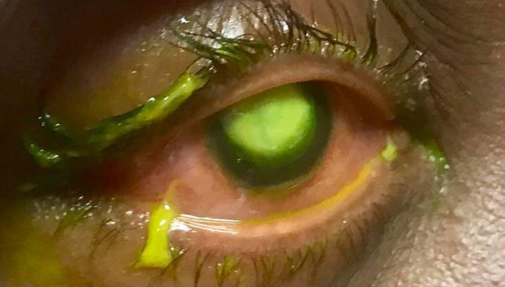 Las consecuencias de dormir con lentillas