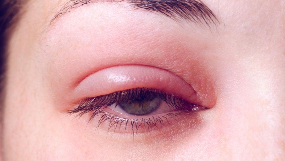 Orzuelo en el ojo es contagioso