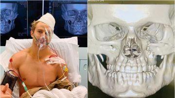 Sage Northcutt, en el hospital tras su brutal ko