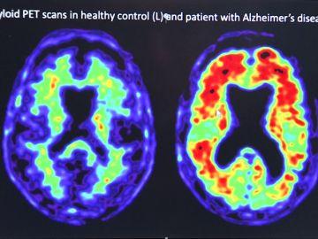 Pfizer ocultó que uno de sus fármacos contra la artritis podría prevenir el Alzheimer
