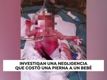 """La Fiscalía ha abierto diligencias tras la petición de investigar la amputación supuestamente """"por error"""" de un bebé en el Hospital General de Castellón"""