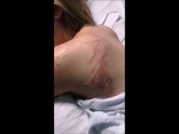 """Una joven sufre una picadura de carabela portuguesa en Murcia: """"Creía que me moría"""""""
