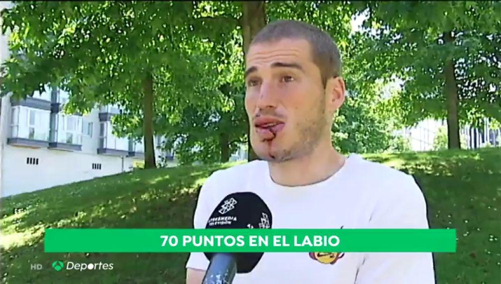 Bergantiños comienza a sangrar en plena entrevista: recibió 70 puntos de sutura en la cara
