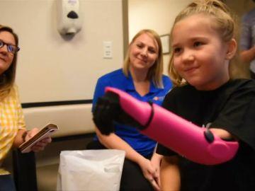 Una niña de ocho años, la persona más joven de Estados Unidos en recibir un brazo biónico