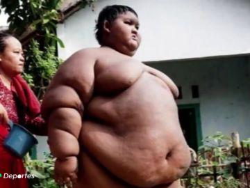 El impactante cambio físico del 'niño más obeso del mundo' que llegó a pesar 200 kilos