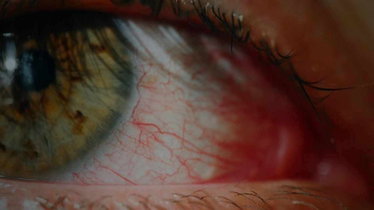 Remedios caseros para aliviar los ojos rojos - Antena 3