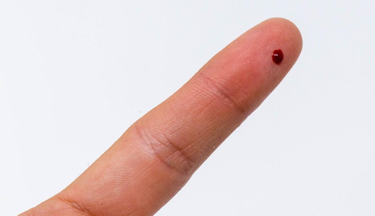Pinchazo en el dedo