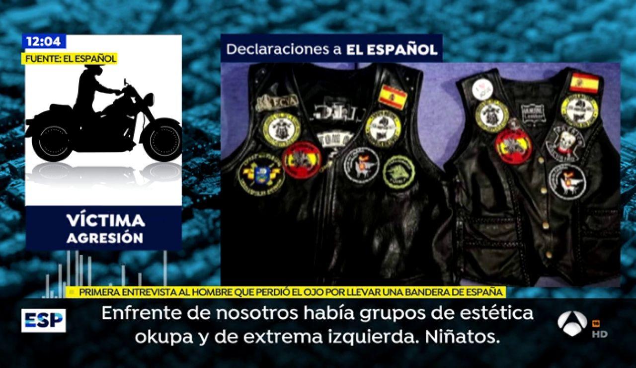 Un joven en Zaragoza pierde un ojo en una brutal agresión