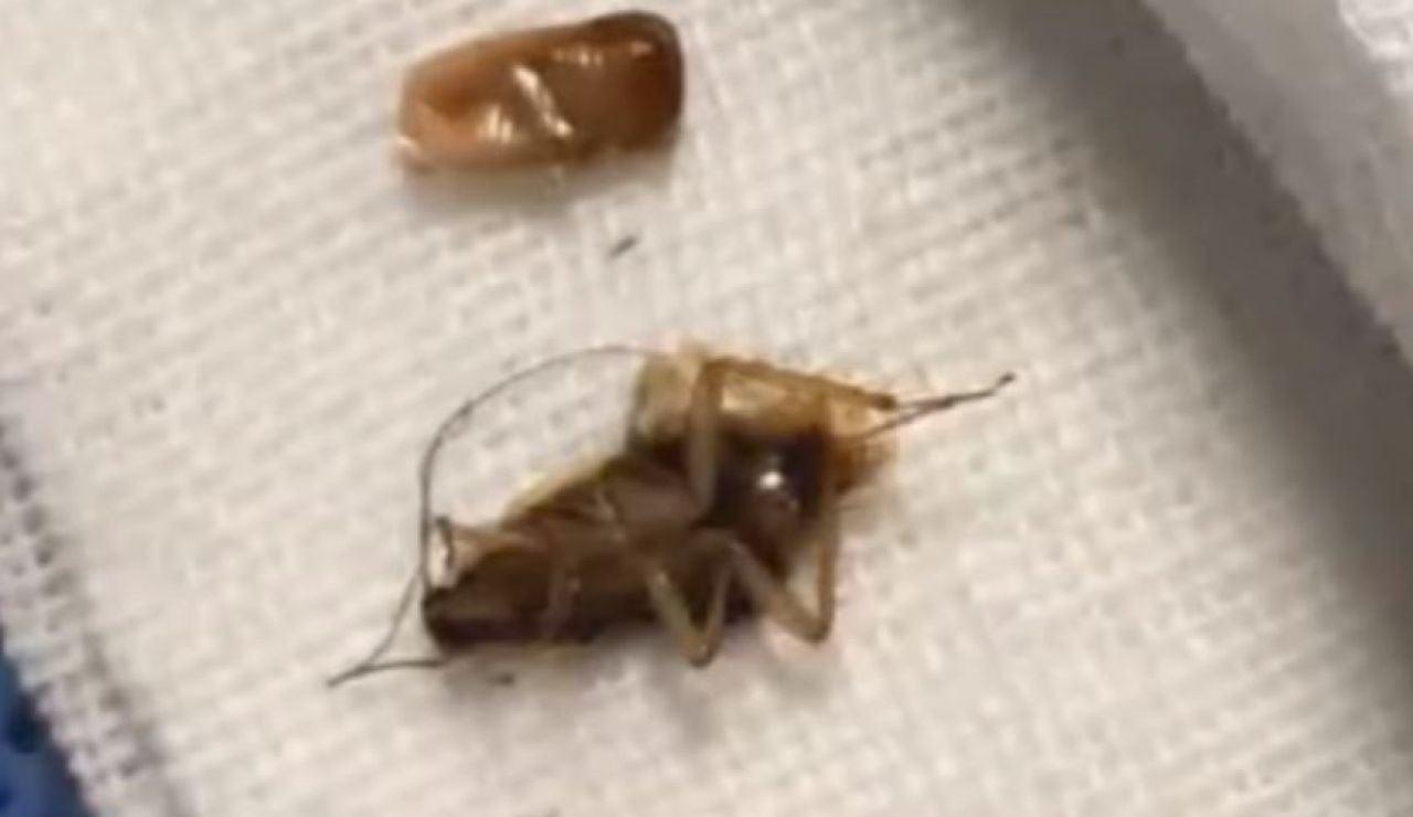 Una de las cucarachas extraídas del oído de un joven chino