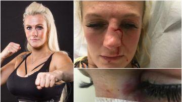 Cindy Dandois en el hospital tras la agresión