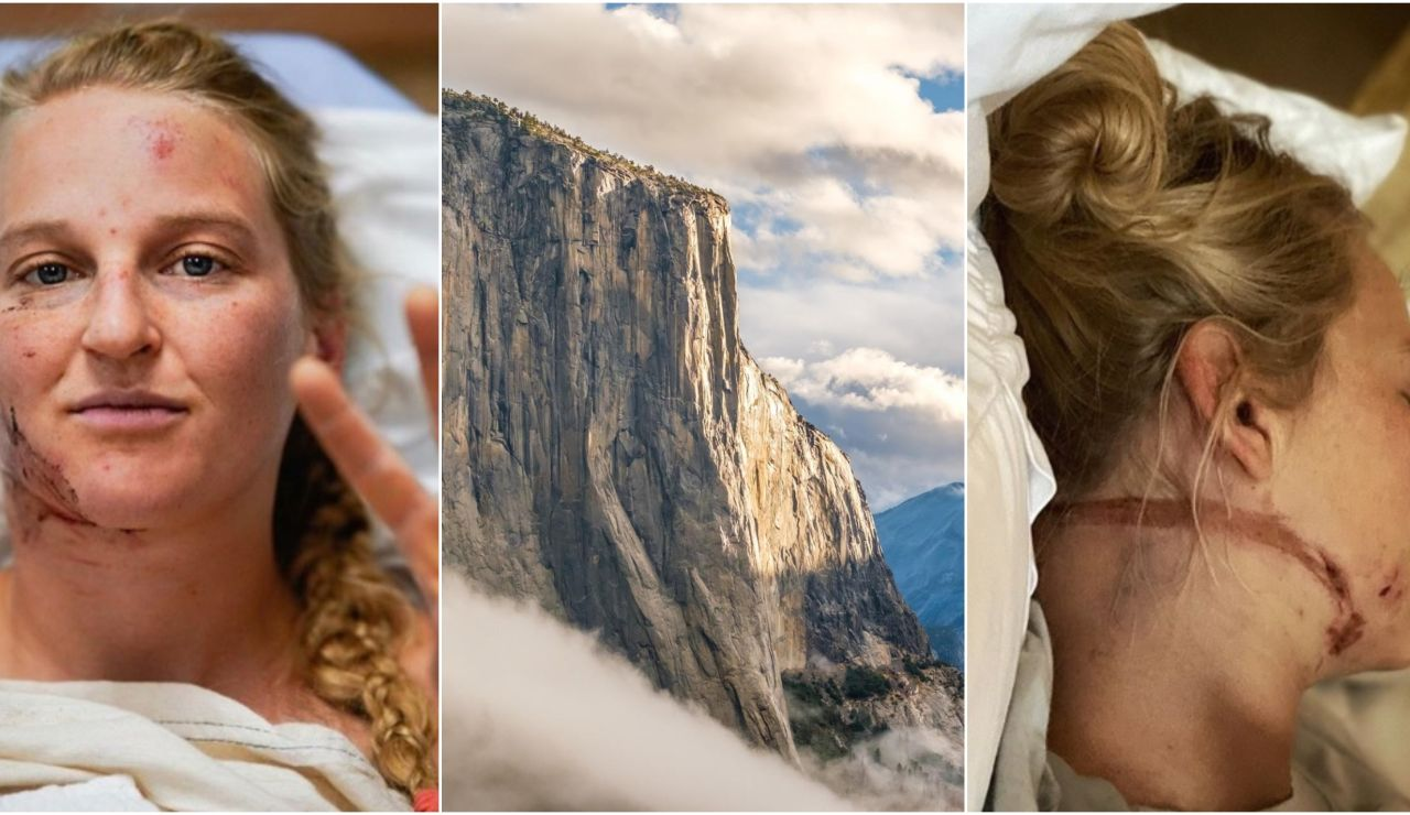 Emily Harrington y las secuelas de su accidente en 'El Capitan'