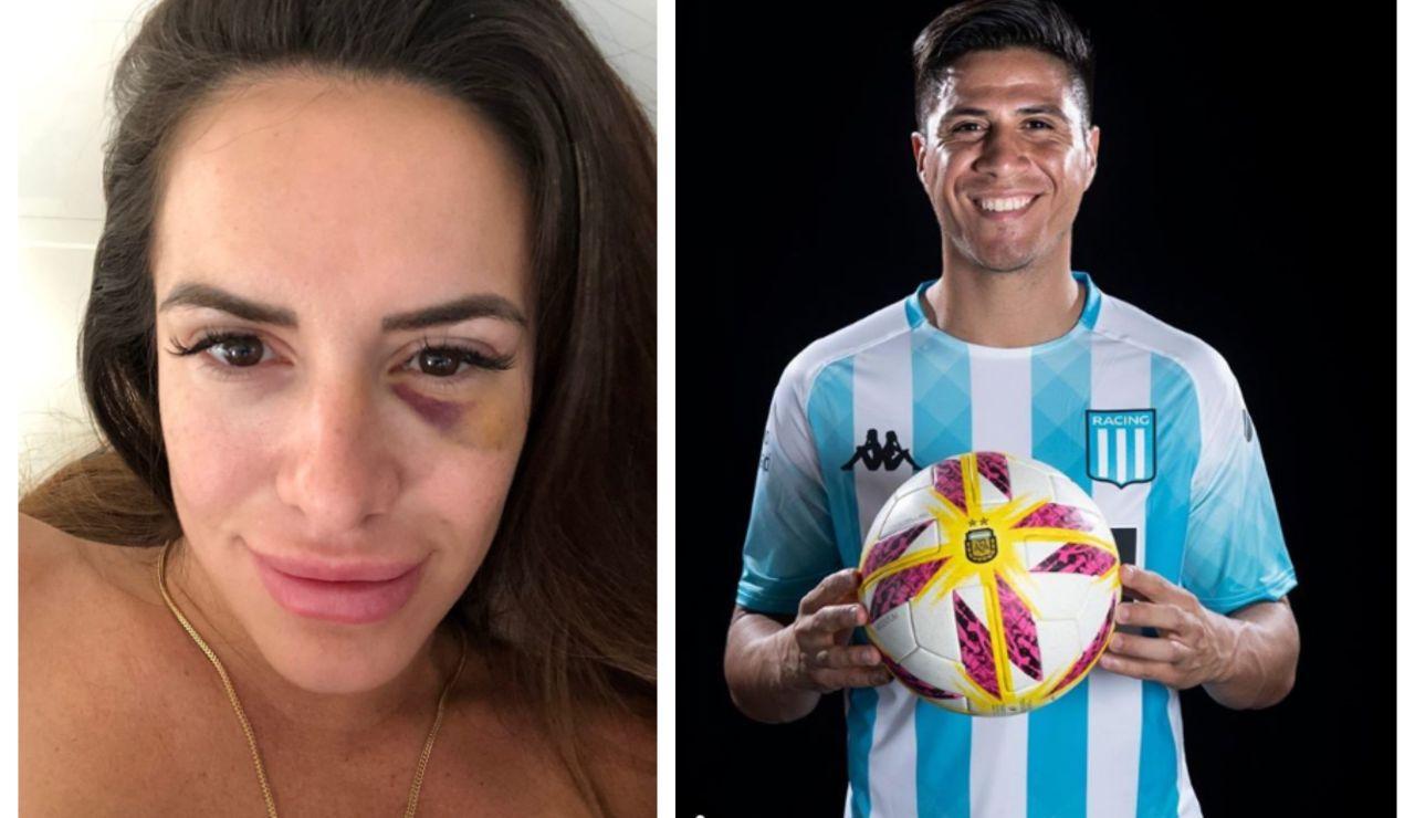 Morella de las Heras, agredida por el jugador Jonatan Cristaldo